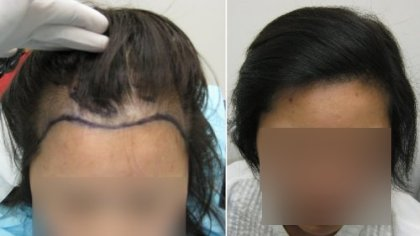 Can Hair Extensions Lead to Hair Loss