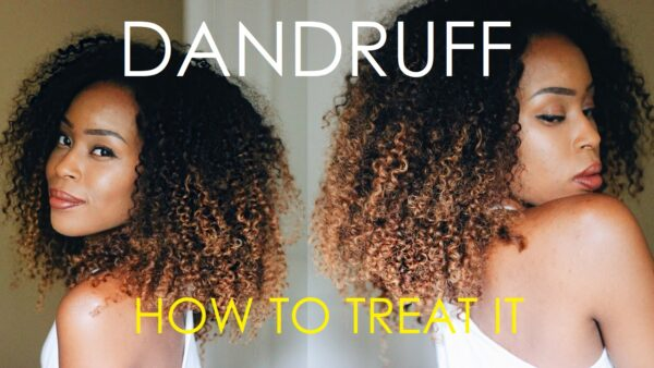 The 3 Types of Dandruff and How to Treat Them