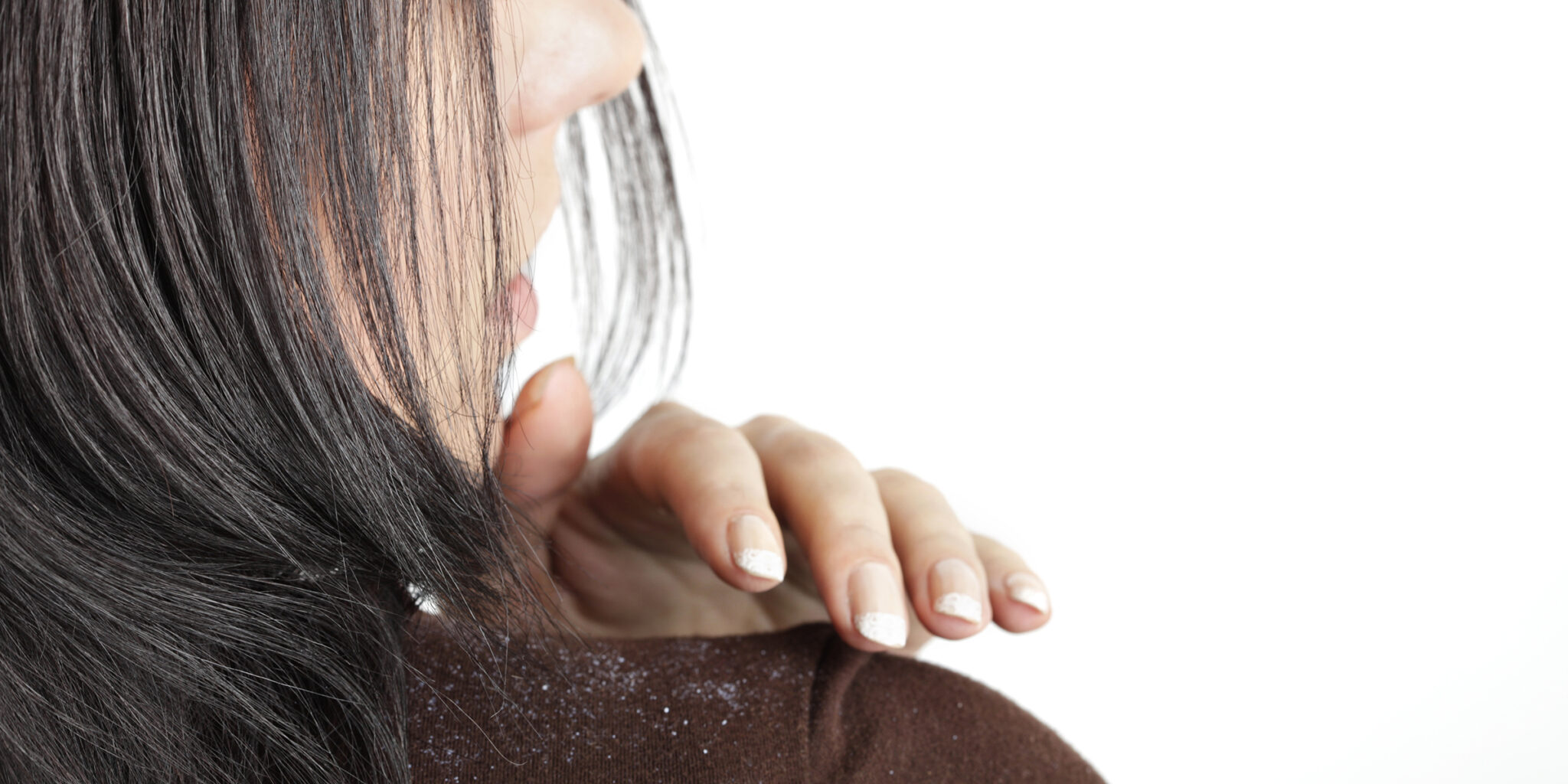 How to Get Rid of Dandruff as Quickly as Possible